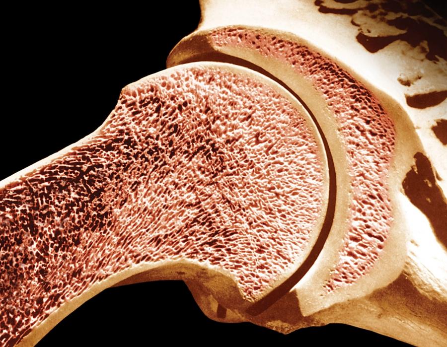 Resultado de imagem para cancer dos ossos