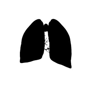 Mesothelioma Asbestos Lung Cancer