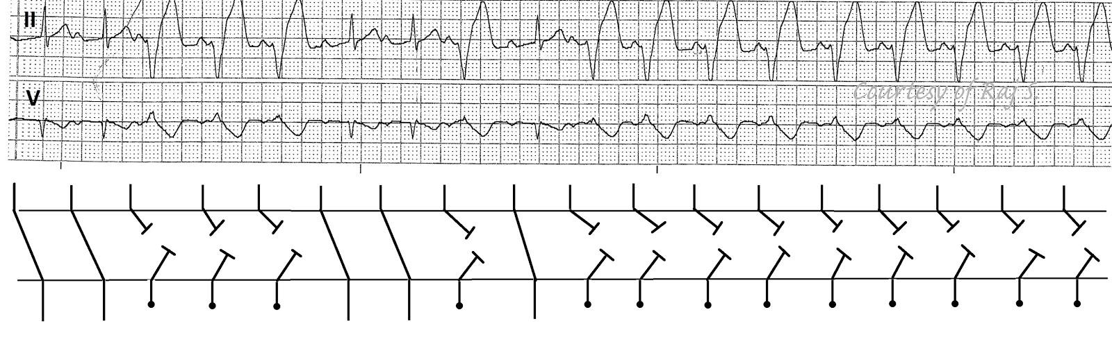 Ladder Diagram Ekg Wiring Libraries Diagrams Ecg Diagramsecg Rhythms Isorhythmic Av Dissociation Sr Vt U Wave With
