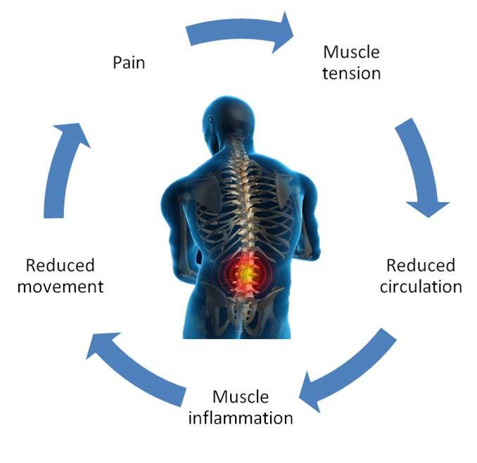 muscle treatment