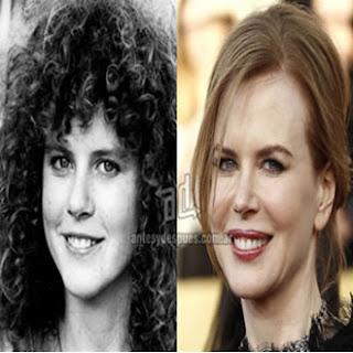 Rinoplastia Nicole Kidman