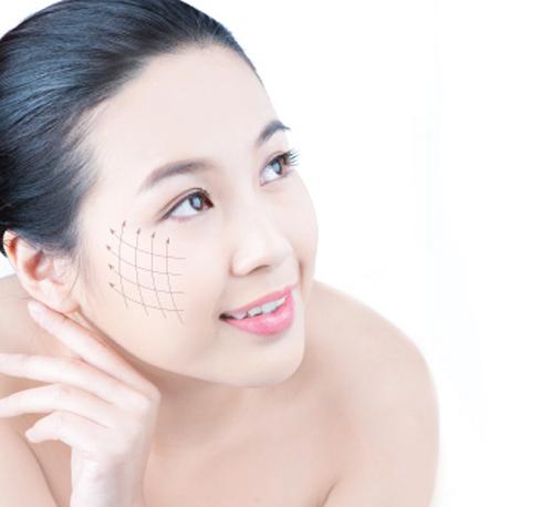 Phẫu thuật căng da mặt là gì?