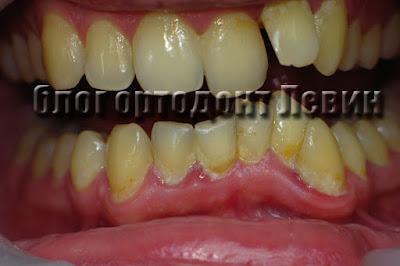Неправильный прикус и пищевой налет на зубах