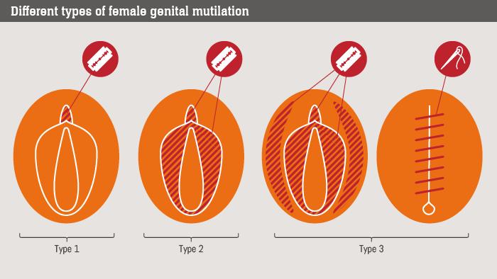 female genital mutilation essays