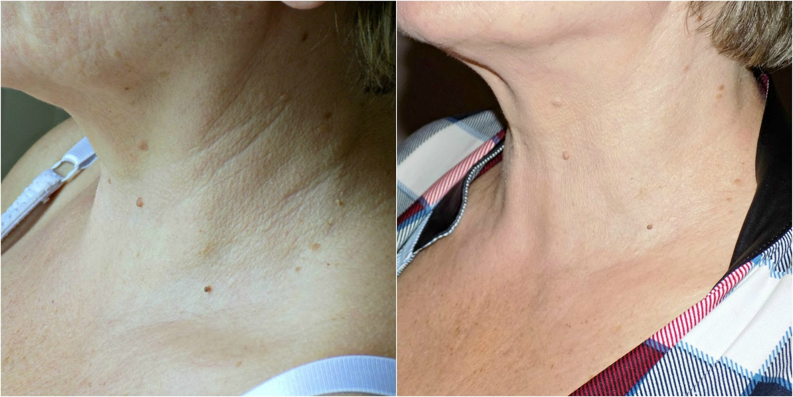 111Skin Y Lift Neck & Decolletage Serum before and after photos