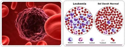 https://2.bp.blogspot.com/-NyEOlygDspA/WDkm0T3zDuI/AAAAAAAAAJY/ScBXpvQjdP8CL-GB3a8VDfX1Nk6svx5bQCLcB/s1600/kanker-darah-horz.jpg