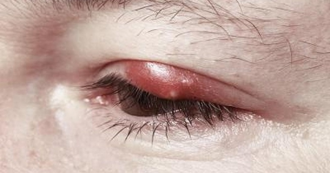 علاج امراض العيون بالاعشاب الطبيعية