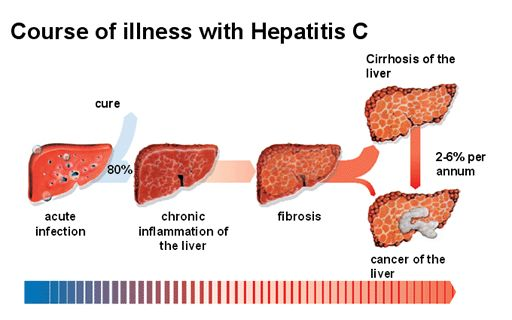 HCV treatment in India