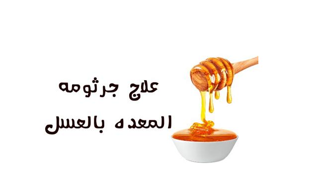 فوائد العسل لجرثومة المعده