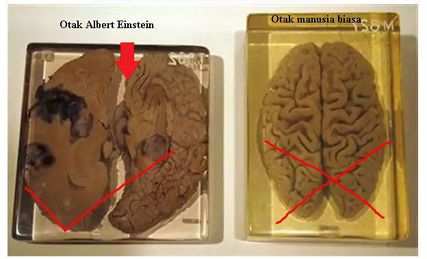 ALL ABOUT OTAK EINSTEIN VS OTAK MANUSIA BIASA