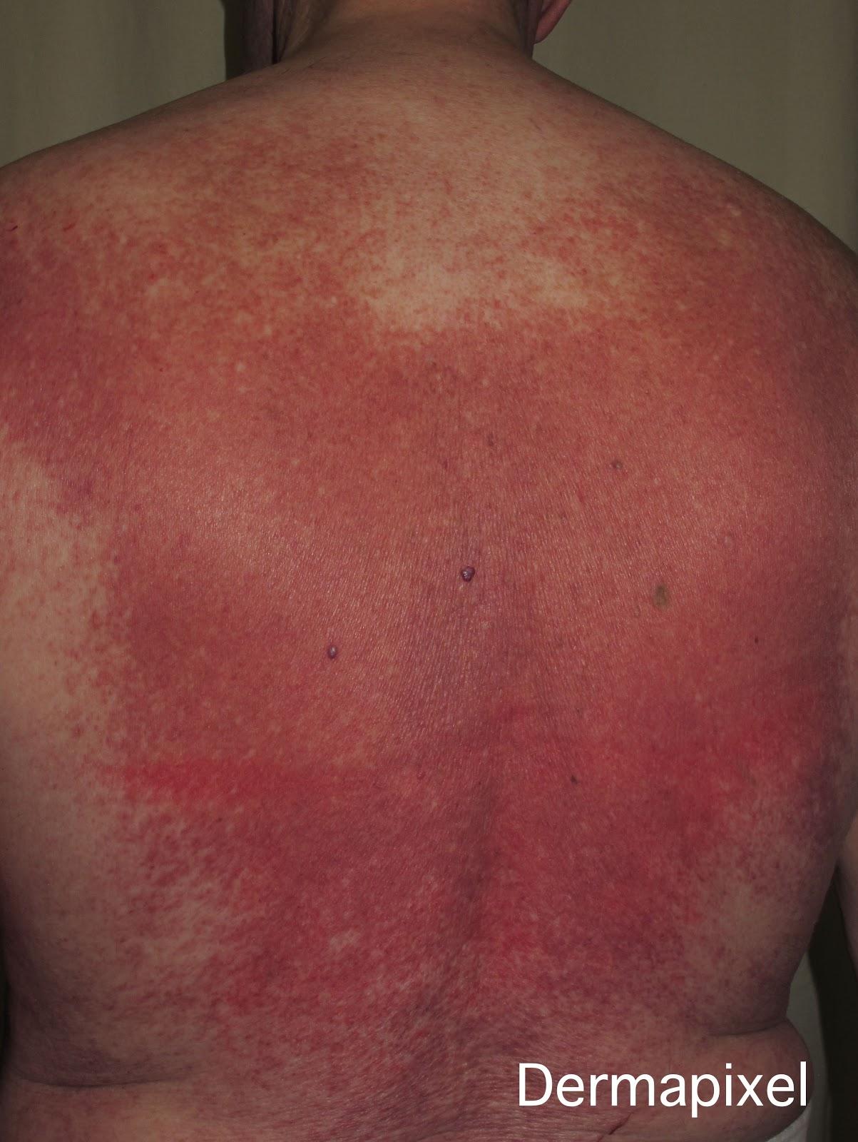 Mastocitosis: más allá de la piel