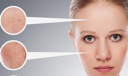 ciltteki gözenekler nasıl kapanır