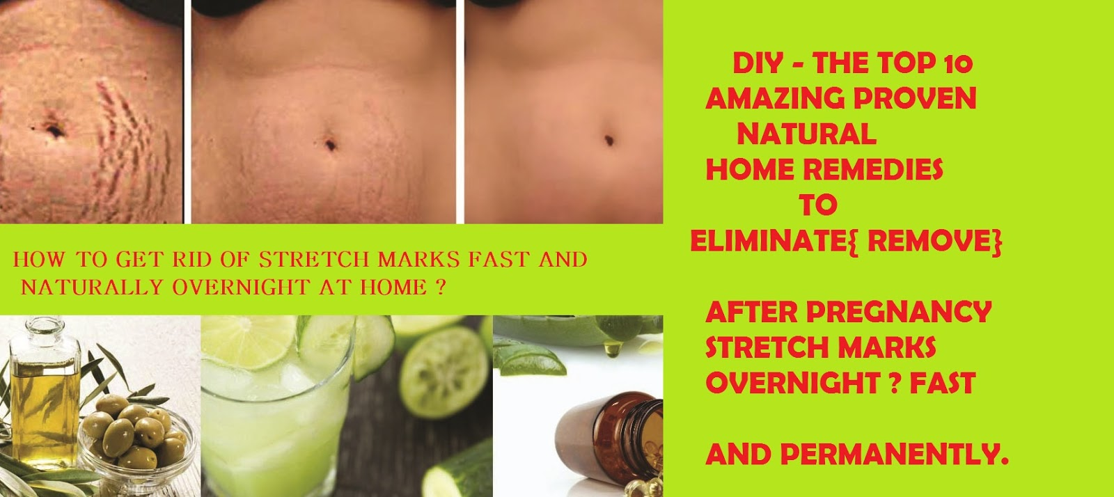 HOW TO GET RID OF STRETCH MARKS FAST AND NATURALLY OVERNIGHT AT HOME