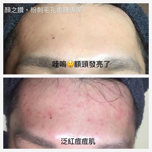 做臉清粉刺保濕護膚比較