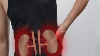 Apa obat alami untuk sakit ginjal