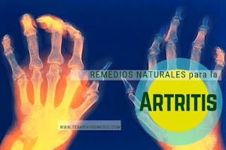Remedios caseros para la artritis reumatoide (AR)