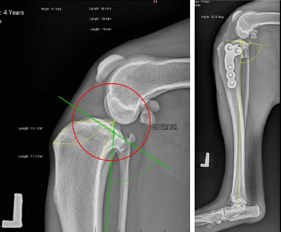 前十字韌帶傷害,導致脛骨平台位移(左圖術前)。經手術治療改變脛骨關節面的角度(右圖術後)。