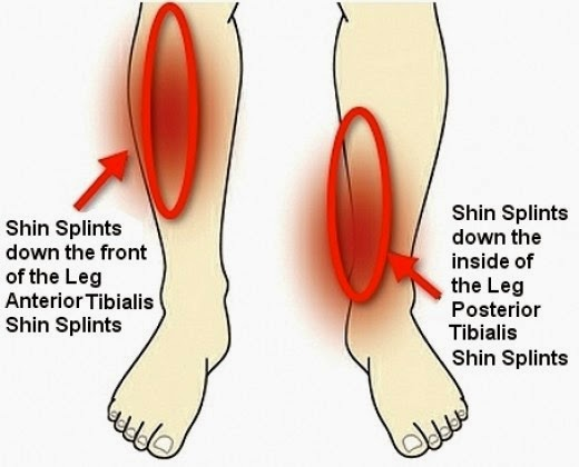 shockwave therapy for shin splints, shin pain, medial tibial stress syndrome