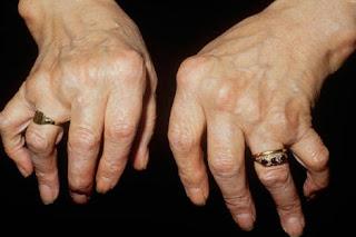 Arthritis & Rheumatism in Details