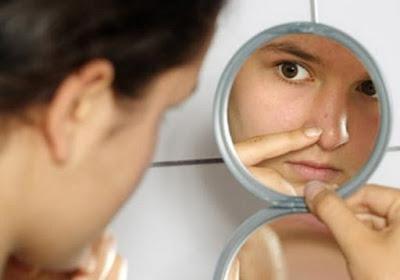 Cara Menghilangkan Jerawat Di Hidung Secara Alami
