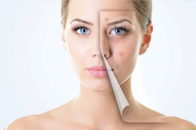 Remedies For Removing Acne Scars