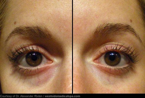 Bag Gloves Images: Eye Bag Removal