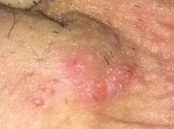Obat Gatal Bintik Merah Pada Batang Penis Yang Paling Ampuh