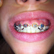 Orthodontiste ou orthopédie dento faciale ODF         ~          Comment dentaire