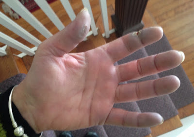Raynauds, distal ulcers in SLE (lupus) patient from Hand-Hell blog