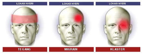 Jenis dan lokasi sakit kepala