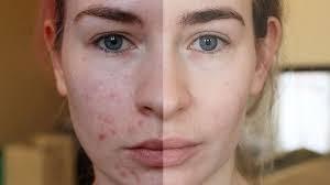 memperbaiki kerusakan kulit akibat jerawat .