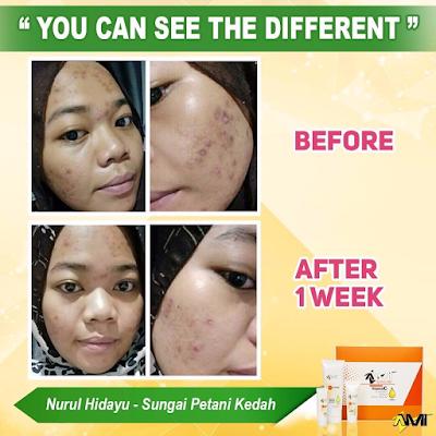 AMI Vitamin Skincare, review AMI Vitamin Skincare, vitamin skincare, ubat muka,