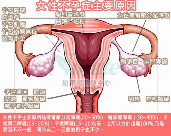 女性不孕原因