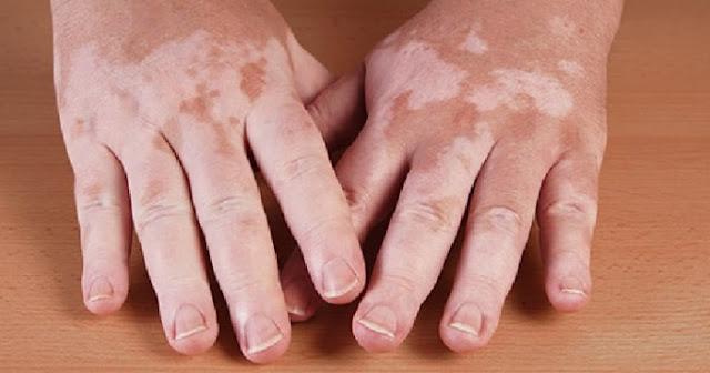 Skin specialist in Mumbai