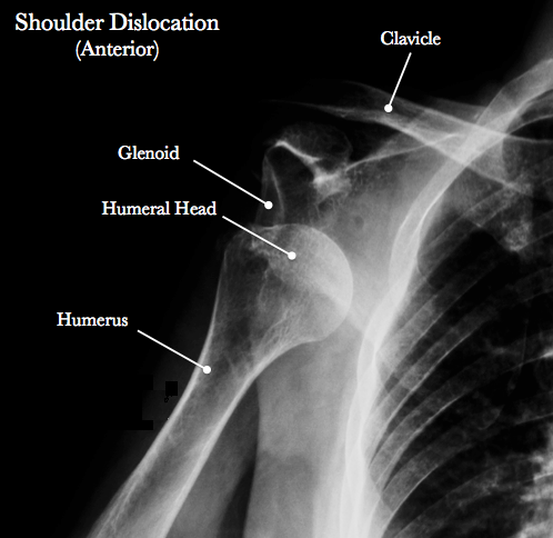 shoulder-dislocation