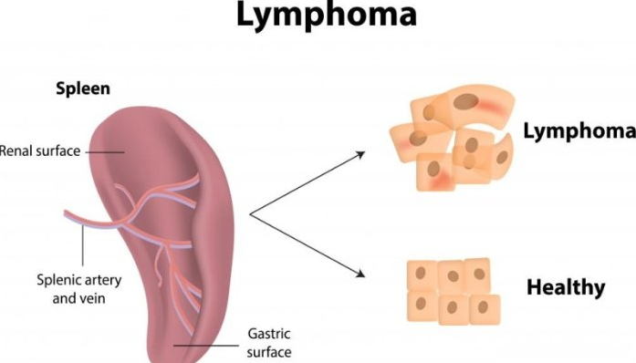 what is lymphoma? ~ cancercare, Skeleton
