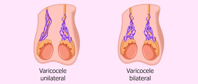 Varikokel unilateral dan varikokel bilateral