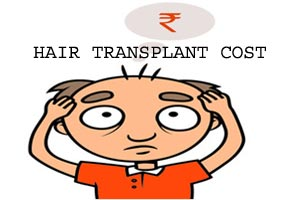 Hair Transplant Cost