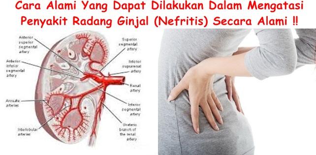Pengobatan Tradisional Radang Ginjal (Nefritis)
