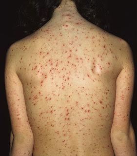 Obat Penyakit Herpes pada Punggung