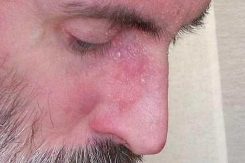 La psoriasis el tratamiento los pinchazos y el ungüento
