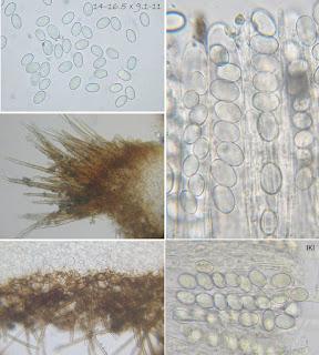 Tricharinacf.hiemalis