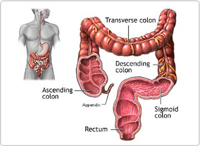 Symptoms Colon Cancer