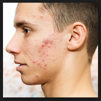 Jawline Acne Causes and Treatment
