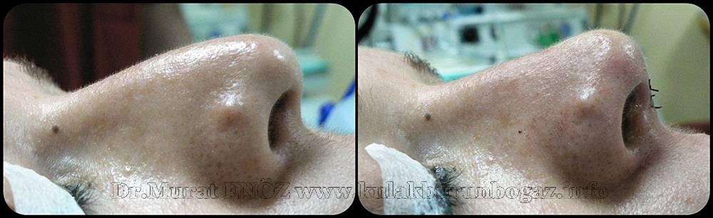 Treatment of nose tip drooping - Treatment of nose tip reshaping - Lifting the nasal tip with external strut graft technique - Technique of nasal tip lifting - The external strut graft technique - Nasal tip lifting with external strut graft technique - Nose lift - Nose tip lifting surgery in Istanbul - Lift nose - Nose tip lifing in Turkey