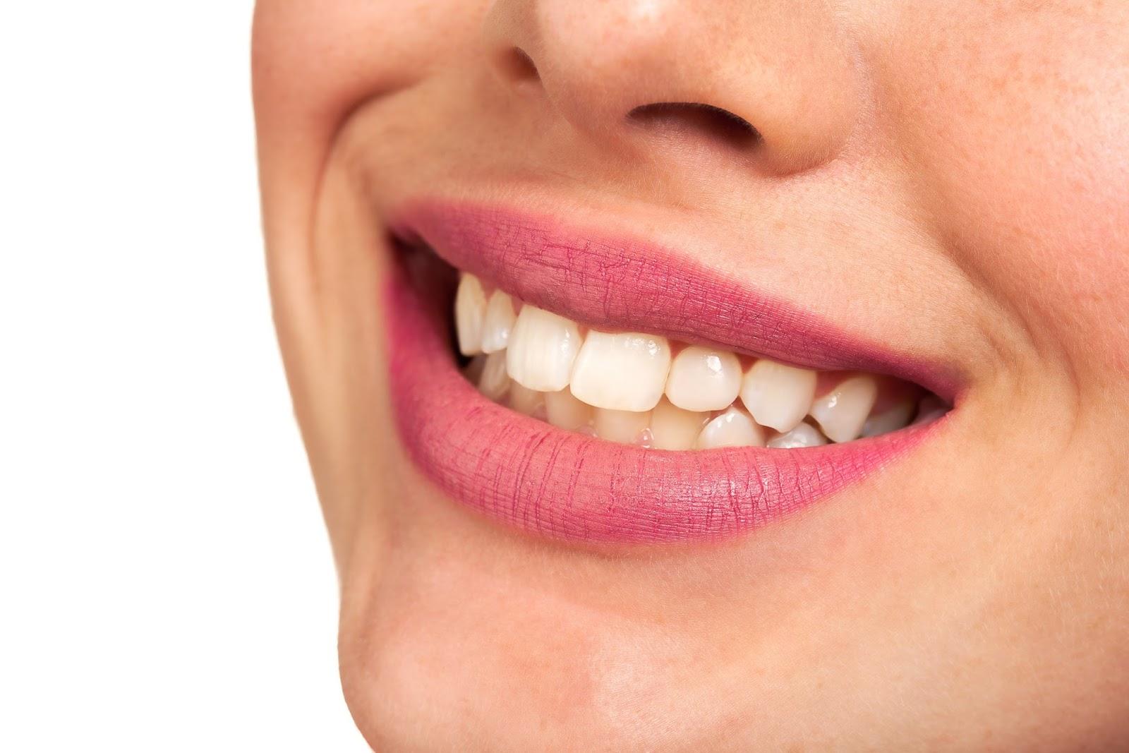 Cara Memutihkan Gigi Kuning Yang Membandel Cara Memutihkan Gigi