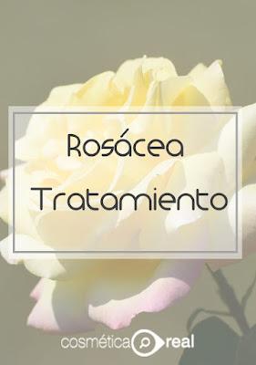 Rosácea: Tratamiento