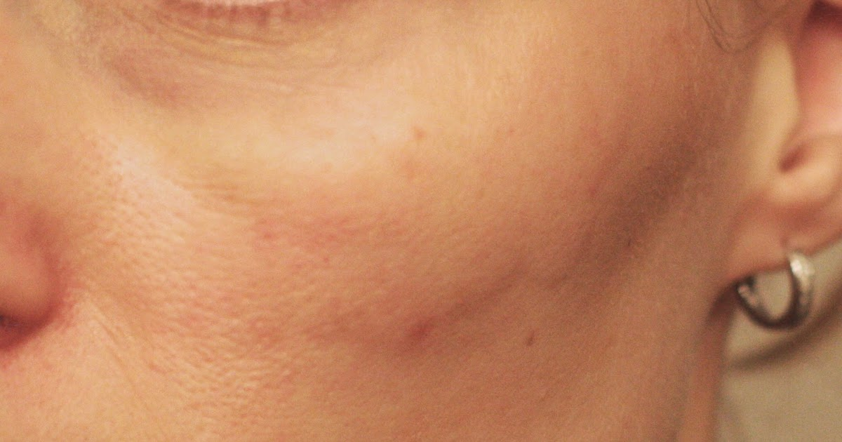 V Beam Pulsed Dye Laser Review For Getting Rid Of Skin Redness
