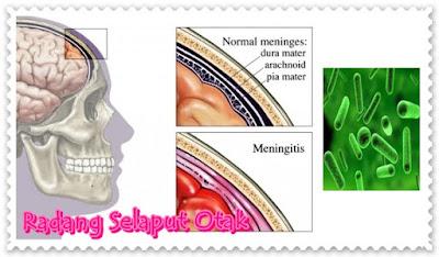 Penyembuhan radang otak meningitis Dengan Cara Ini