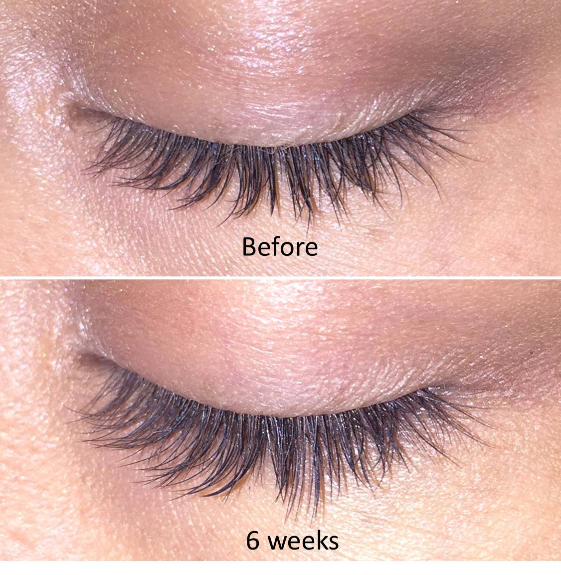 Thicker Fuller Lashes With Zoria Boost Lash Intensifying